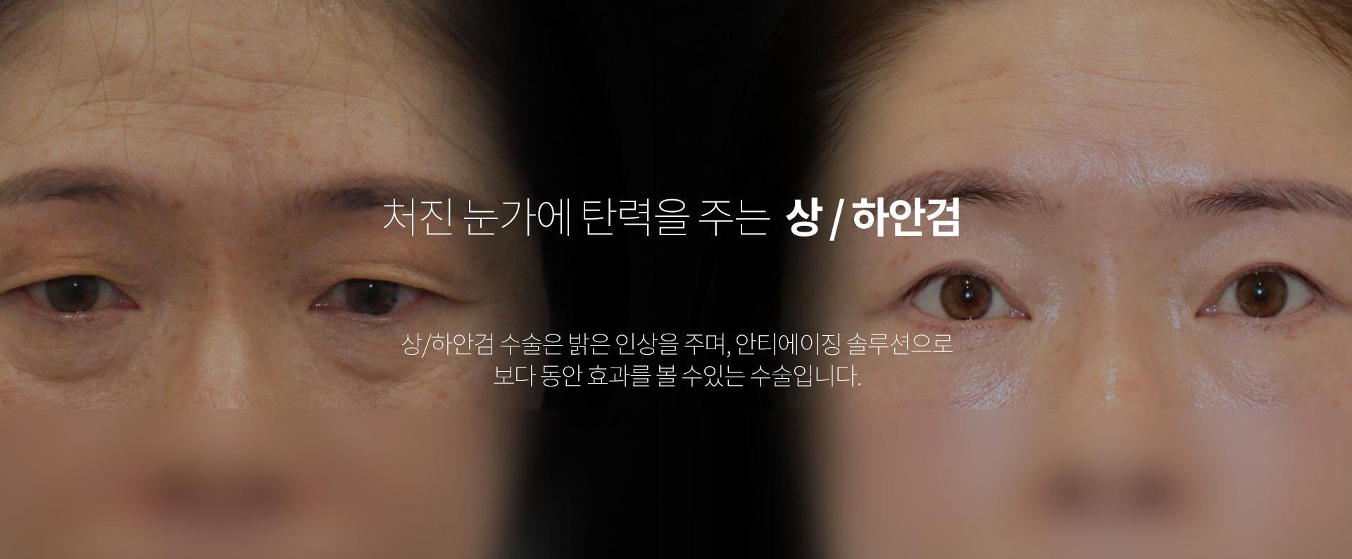 상하안검 01