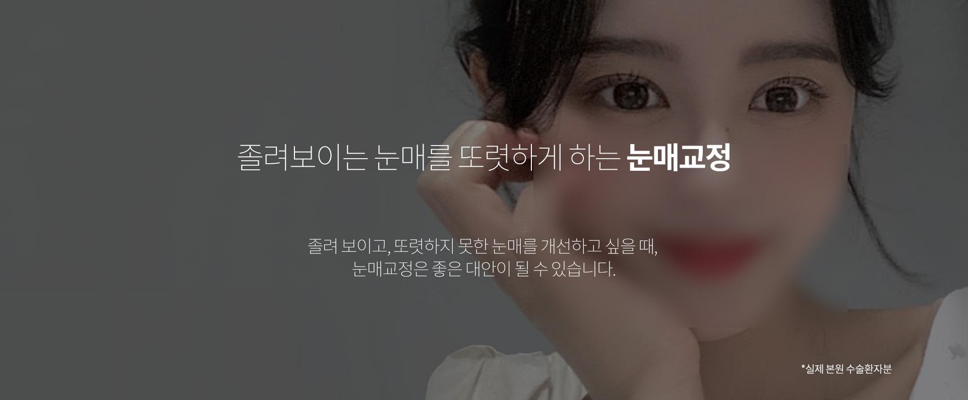 눈매교정 01